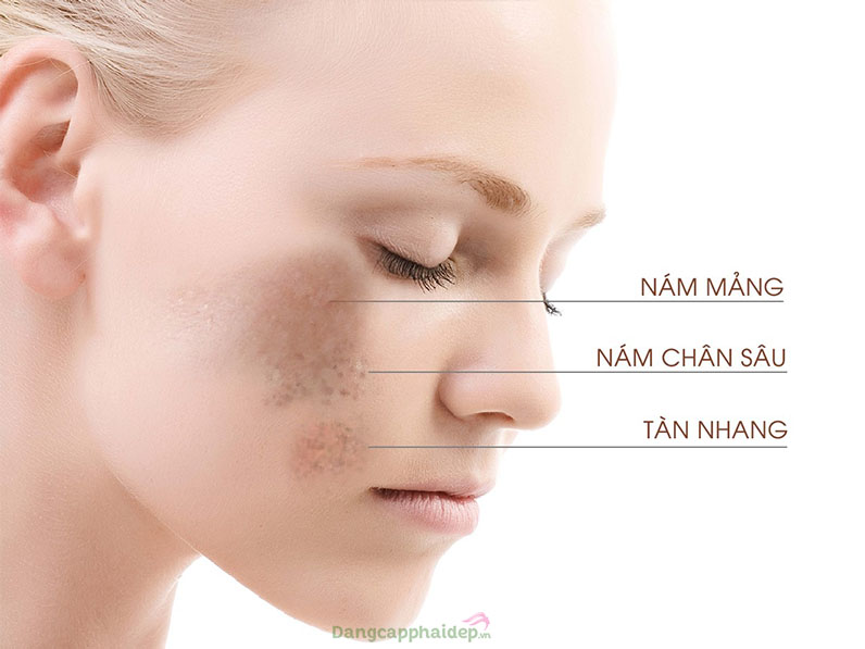 Qua 30 tuổi phụ nữ thường đối mặt với chứng tăng sắc tố.