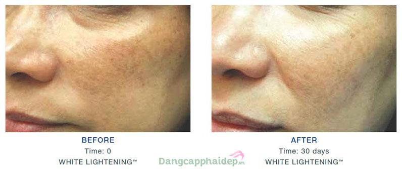 Is Clinical white lightening serum cải thiện rõ rệt sắc tố trên da giúp da sáng mịn hơn.
