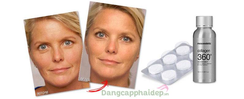 Mesoestetic Collagen 360 Capsulated Mask là phẳng nếp nhăn, làm căng da tức thì