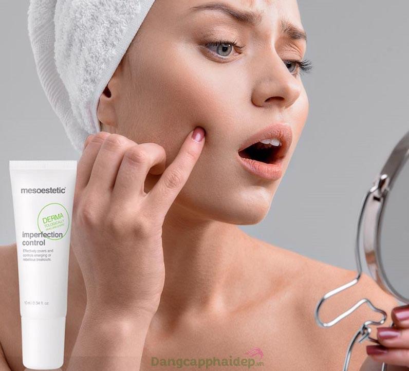 Trị mụn cấp tốc, che phủ nhanh các nốt mụn trên da với Mesoestetic Imperfection Control