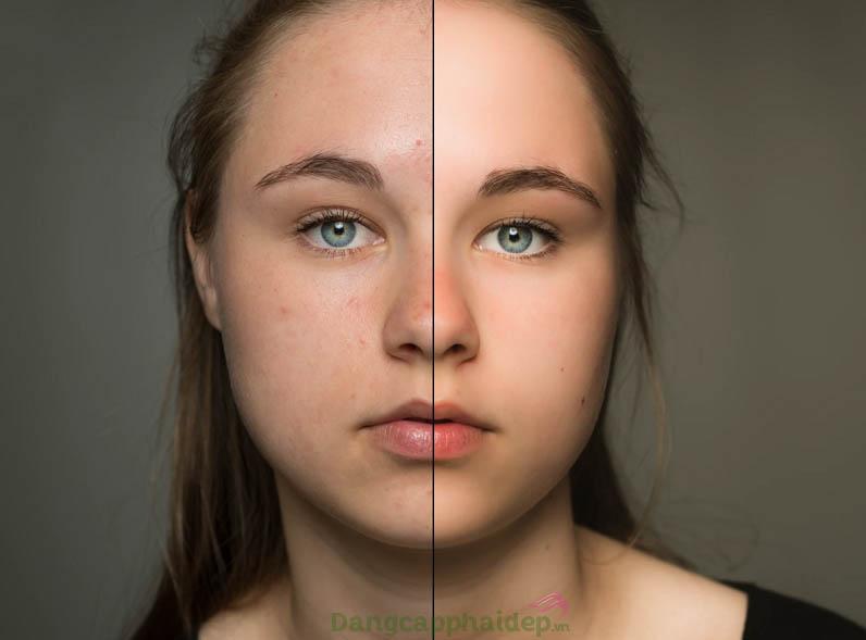 Sự cải thiện rõ rệt trên da mặt sau khi sử dụng kem trị mụn che khuyết điểm Mesoestetic Imperfection Control