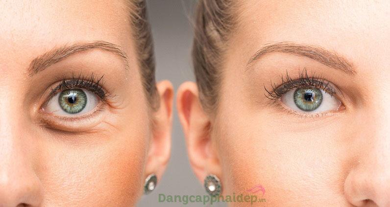 Làn da vùng mắt cải thiện tích cực từng ngày khi sử dụng mặt nạ dưỡng mắt Mesoestetic Power Patch Eye Light