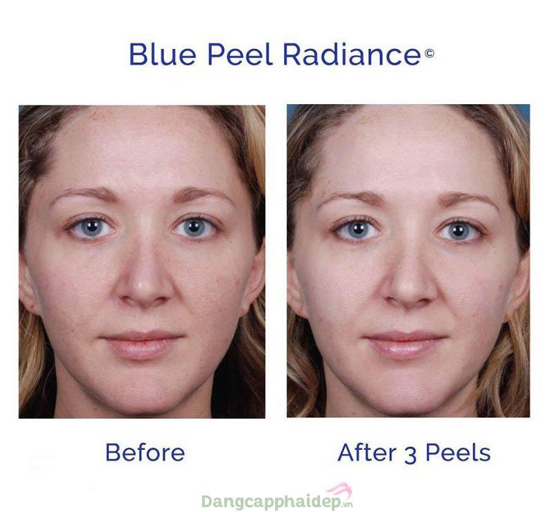 Làn da thay đổi tích cực sau liệu trình sử dụng Obagi Blue Peel Radiance Kit