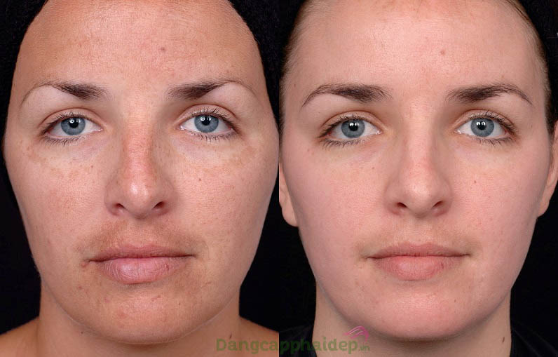 Làn da cải thiện tích cực từng ngày khi sử dụng Obagi C Fx System C-Clarifying Skin Brightening Serum