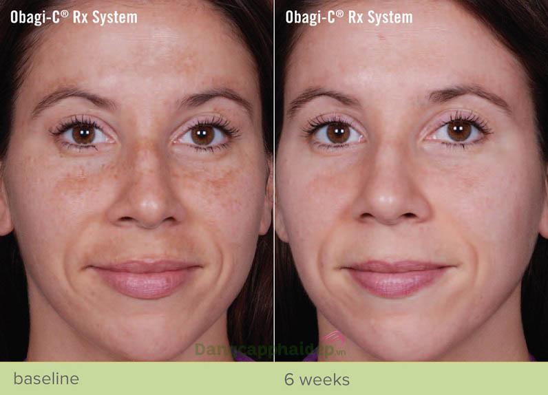 Sự thay đổi tích cực của làn da sau khi sử dụng trọn bộ sản phẩm Obagi-C Rx System Normal Dry