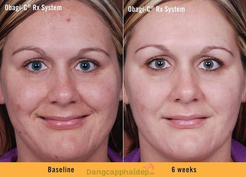 Làn da thay đổi nhanh chóng sau thời gian ngắn sử dụng bộ sản phẩm Obagi-C Rx System Normal Oily
