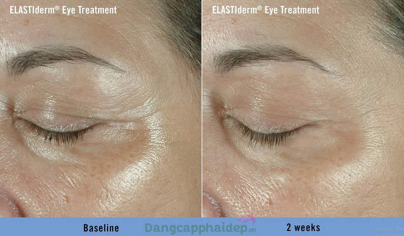Làn da vùng mắt thay đổi tích cực chỉ sau 2 tuần dùng Obagi ELASTIderm Eye Treatment Gel