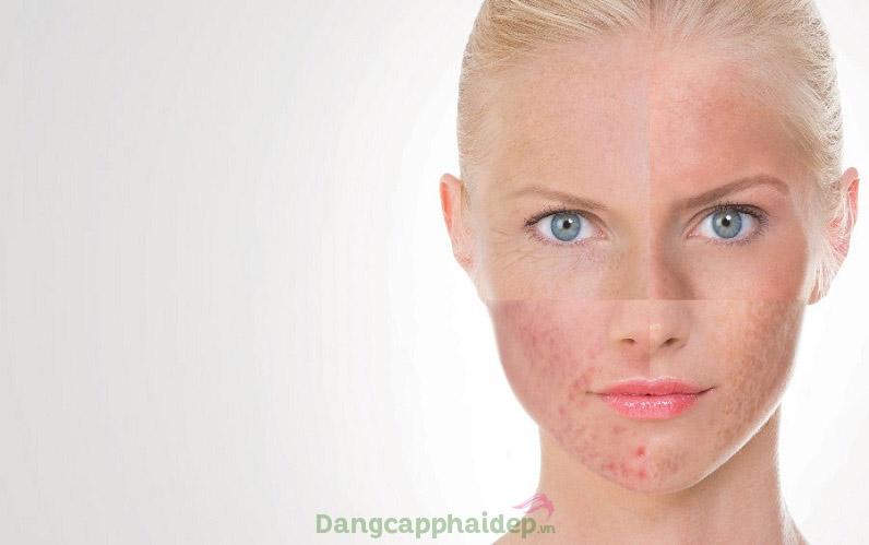 Làn da xuất hiện các dấu hiệu lão hóa, da mỏng yếu kích ứng vì mỹ phẩm kém chất lượng...phải làm sao?