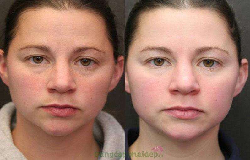 Sự thay đổi tích cực trên da sau thời gian sử dụng trọn bộ sản phẩm