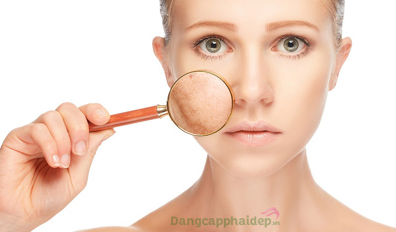Bộ sản phẩm thiết kế dành cho da thường đến da khô; da sạm nám, tông màu da không đều...