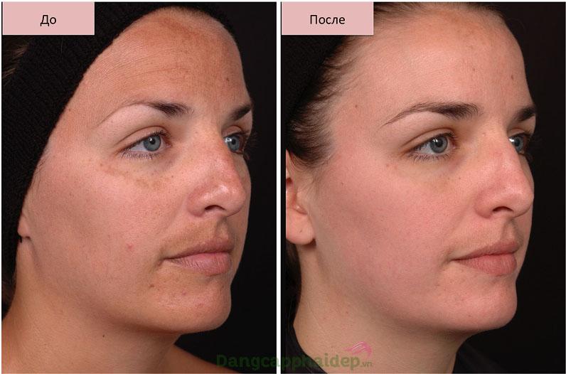 Làn da thay đổi tích cực sau thời gian sử dụng kem dưỡng Obagi NuDerm Sunfader SPF 15