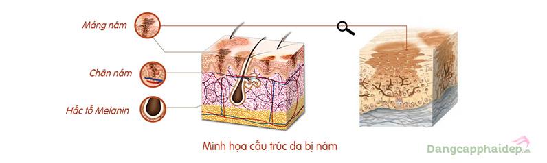 Hắc tố Melanin tăng cao do nhiều yếu tố tác động dẫn đến hiện tượng xuất hiện các đốm nâu, mảng nám trên da.