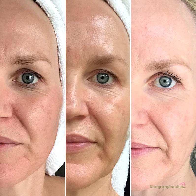 Sau 90 ngày dùng Is Clinical White Lightening Complex, đốm nâu sạm nám mờ hoàn toàn; khôi phục làn da trắng hồng rạng rỡ.
