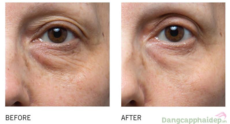 Vitamin C rất tốt trong việc phục hồi làn da mắt.