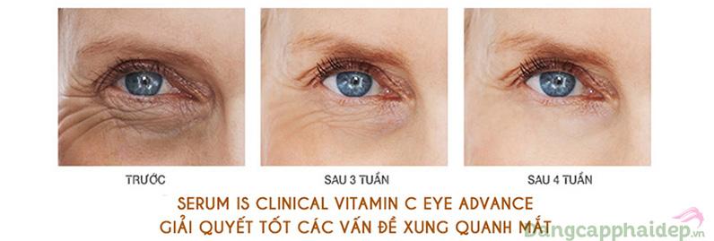 C eye serum advance hiệu quả ngay sau 4 tuần sử dụng.