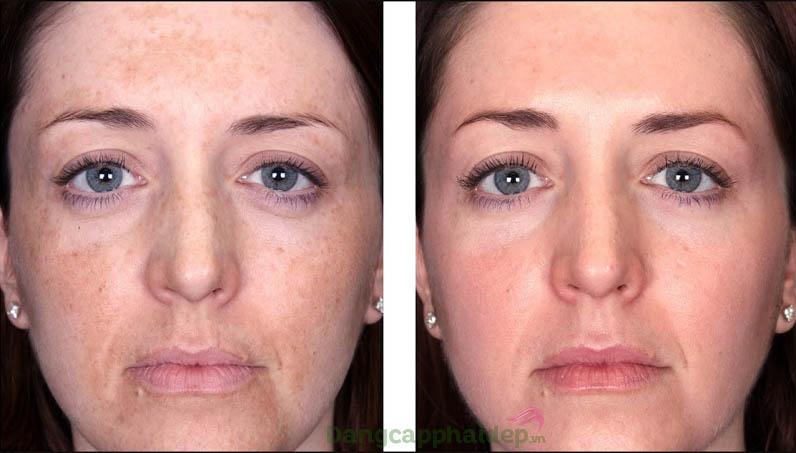 Sự cải thiện tích cực của da sau thời gian duy trì sử dụng bộ kem trị nám Mesoestetic Cosmelan Pack