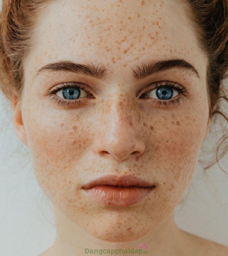 Đốm nâu, tàn nhang, thâm nám...là những dấu hiệu của chứng tăng sắc tố da