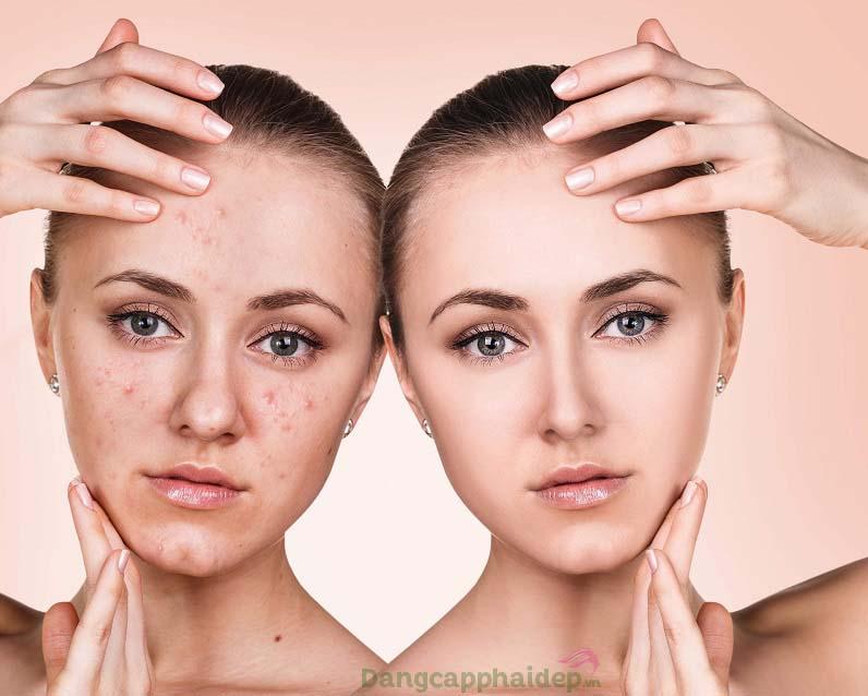 Điều trị và ngăn ngừa mụn hiệu quả khi sử dụng peel Mesoestetic Mesopeel Salicylic 30%