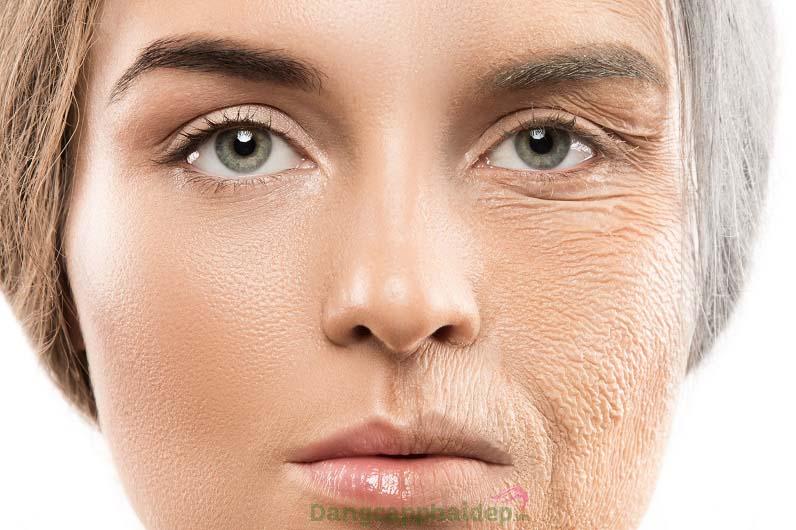 Thiếu hụt collagen theo thời gian, da chảy xệ, lỏng lẻo nhăn nheo...