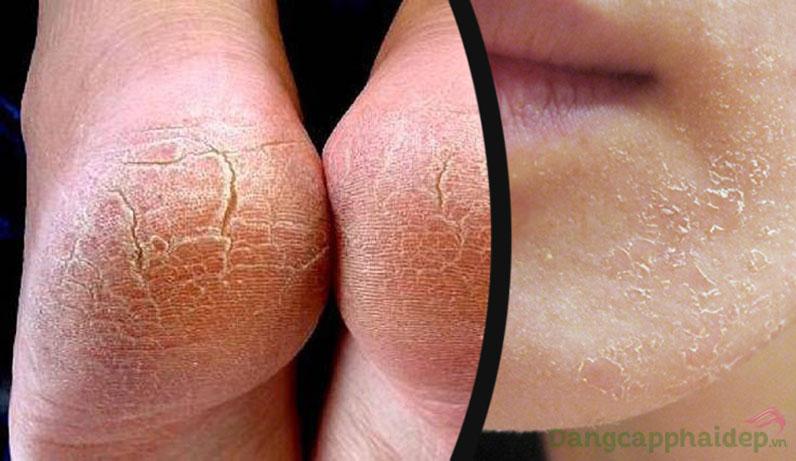 Vào những mùa hanh khô như mùa đông làn da khô trở nên bong tróc nứt nẻ.