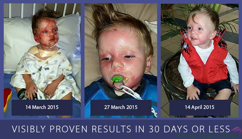 Khả năng phục hồi làn da bị hư tổn hiệu quả, nhanh chóng chỉ sau 30 ngày.