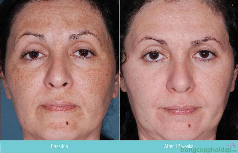 Retinoids nổi tiếng với chức năng chống lão hóa và cải thiện sắc tố da.