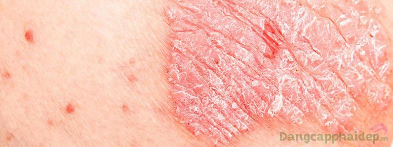 Retinoids dạng thuốc uống thường rất mạnh, đùng để điều trị các bệnh về da như vẩy nến.