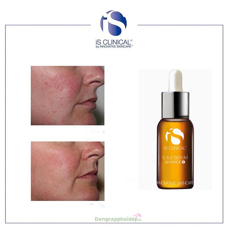 iS Clinical C&E điều trị các tổn thương da, nuôi dưỡng làn da sáng mịn.