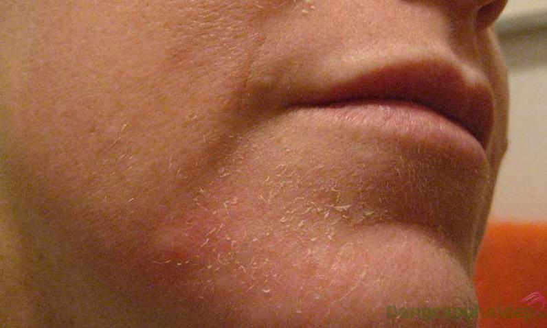 Da mất lớp lipid hoặc protein sẽ khiến da khô, mất nước, dễ bị phát ban, bong chóc.