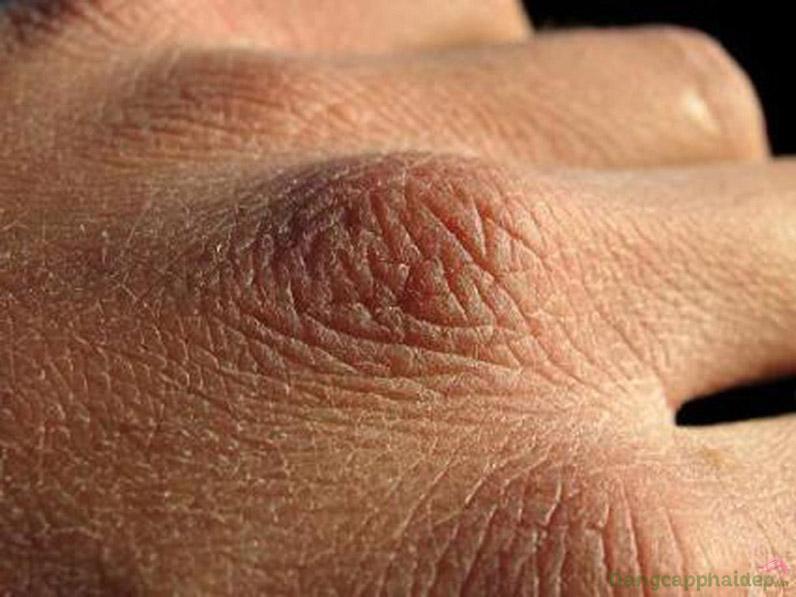 Da khô, nhăn nhúm biểu hiện của làn da sắp bị lão hóa.