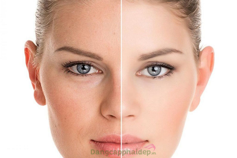 Sản phẩm lý tưởng dành cho bất cứ ai muốn cải thiện làn da sáng mịn đều màu, đẩy lùi lão hóa sớm