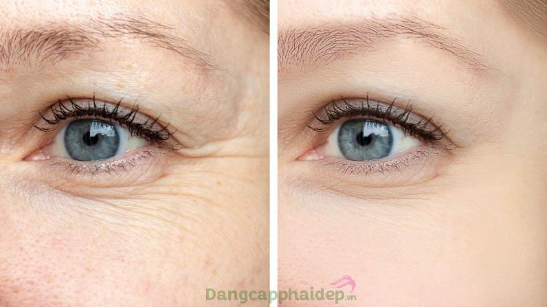 Làn da vùng mắt thay đổi tích cực chỉ sau 4 tuần sử dụng kem dưỡng mắt