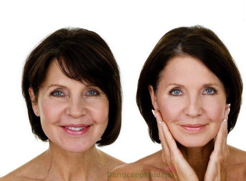 Sản phẩm dành cho mọi loại da đang có dấu hiệu lão hóa cần khắc phục