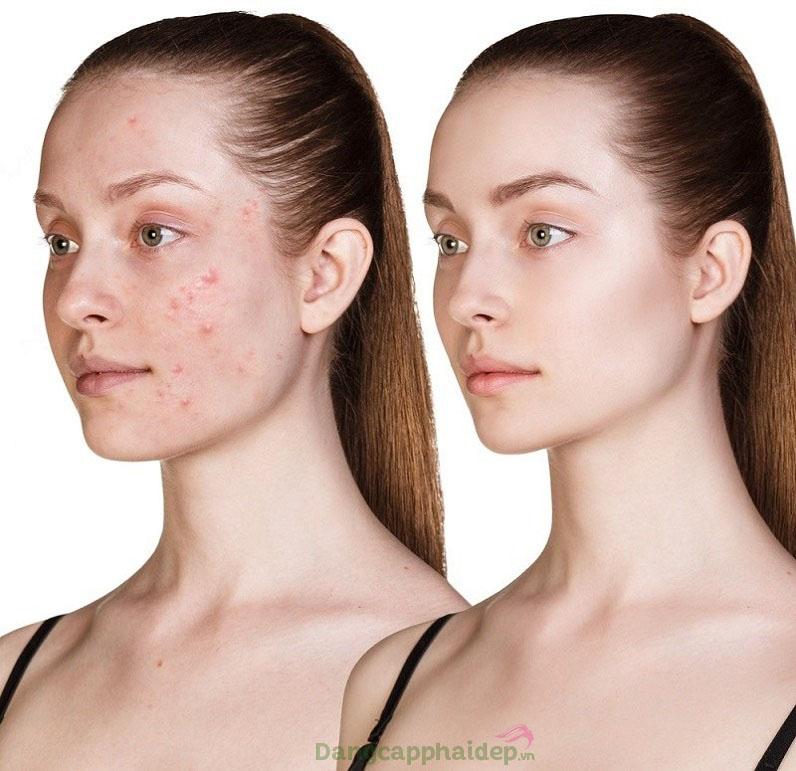 Làn da có sự thay đổi rõ rệt sau khi sử dụng tinh chất peel da trị mụn Exuviance Daily Acne Peel