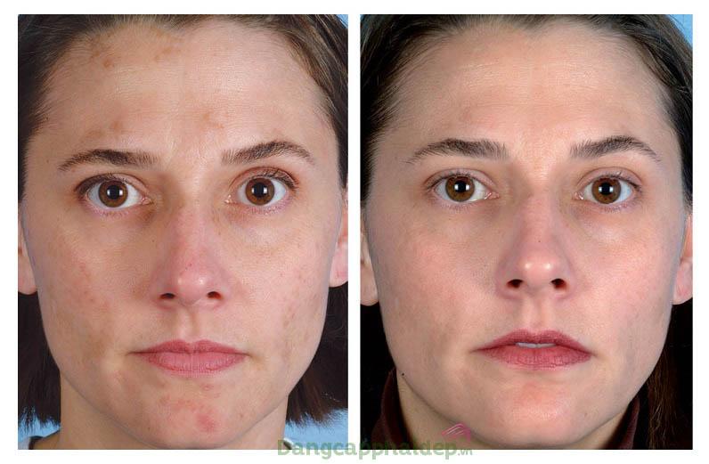 Sản phẩm khắc phục hiệu quả các đốm đen, thâm nám trên da