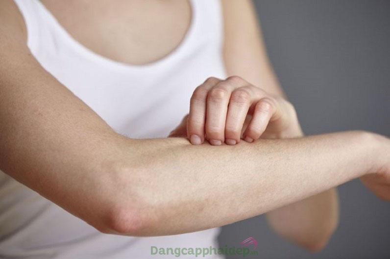 Sản phẩm lý tưởng cho người bệnh dày sừng chân lông, da khô, sần sùi...