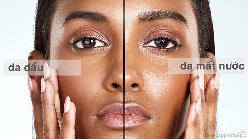 Da dầu là một loại da, da mất nước là một tình trạng da nhưng điểm chung là đều tiết dầu.