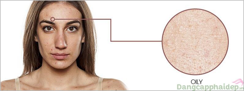 Da dầu rất dễ nổi mụn và thường làm cho da trông sạm đen hơn.
