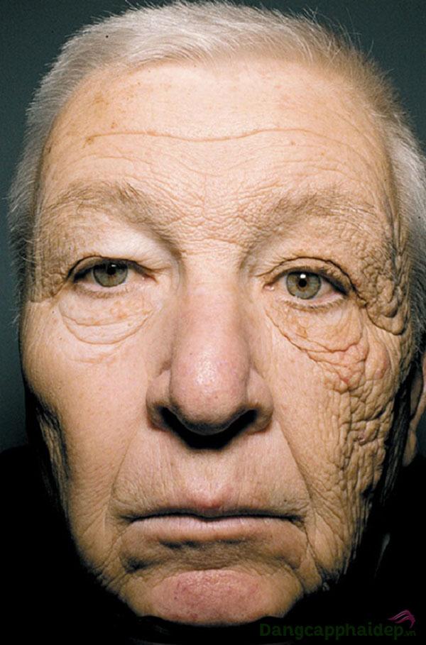Một tài xế 69 tuổi nửa bên mặt tiếp xúc với ánh nắng mặt trời bị lão hóa trầm trọng.
