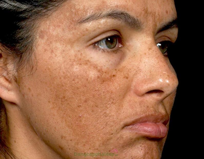 Nám da là loại hắc sắc tố gây ám ảnh nhất cho phụ nữ trung niên.