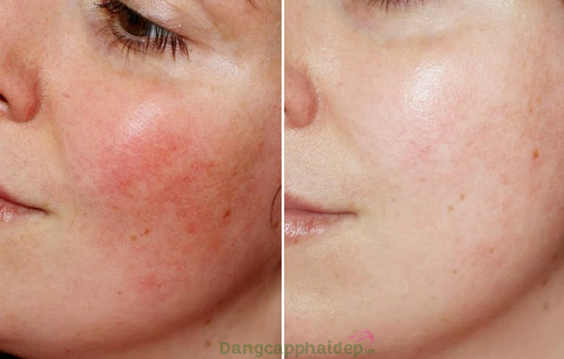 Trước và sau khi sử dụng mặt nạ dưỡng SensiPlus Hydrasilk Mask