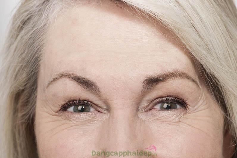Đừng để sự già nua trên đôi mắt tố cáo tuổi tác của bạn!