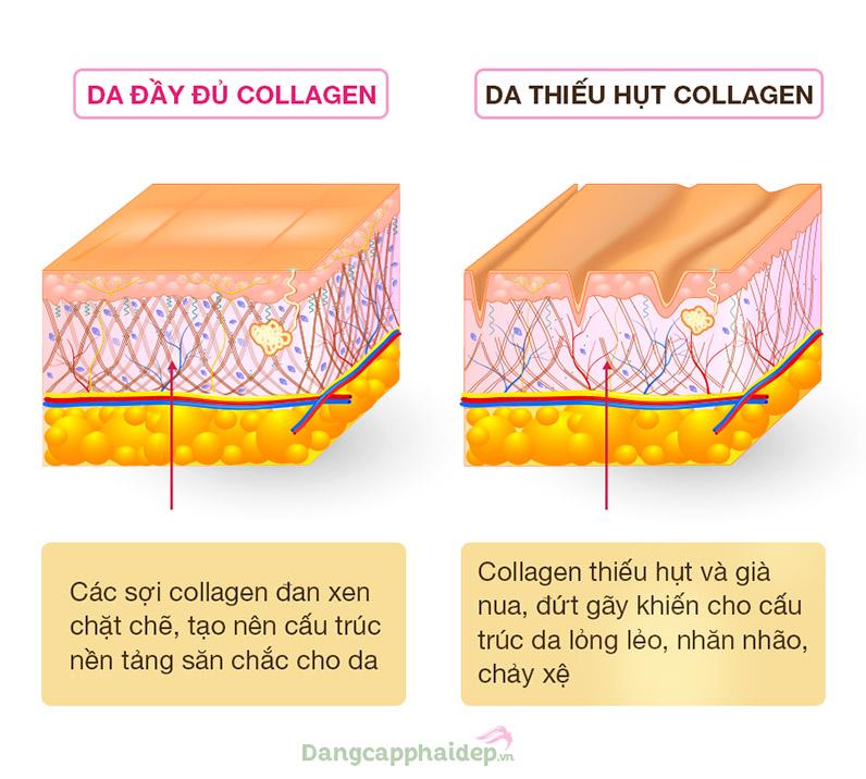 Da thiếu hụt collagen sẽ bị chảy xệ, nhăn nheo.