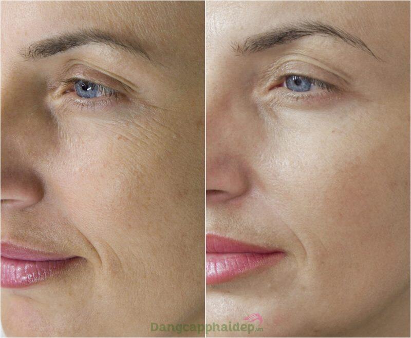 Dr.Spiller Collagen Cream tăng cường độ đàn hồi, cải thiện nếp nhăn rõ rệt.