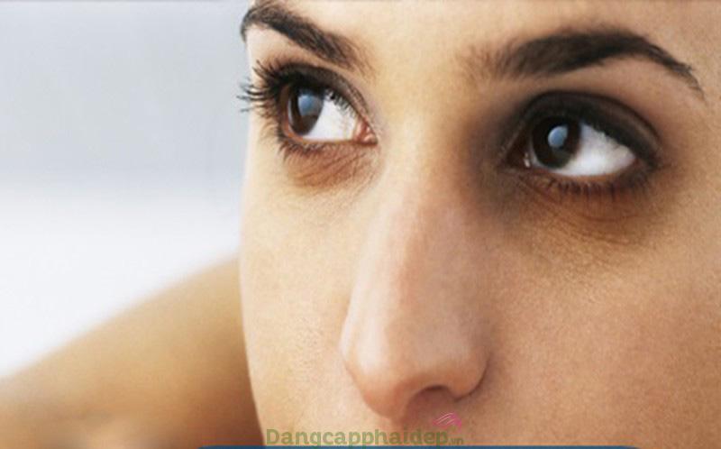 Mắt thâm đen, chùng nhão và nhiều nếp nhăn vì không được bôi kem chống nắng thường xuyên.