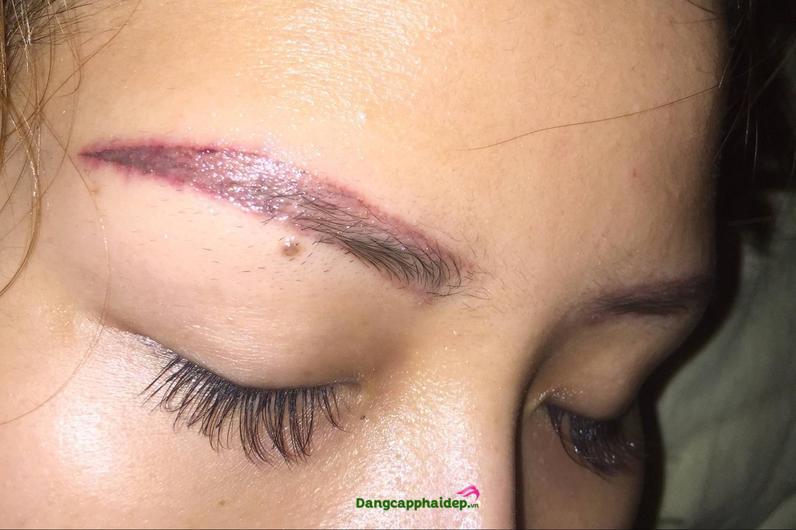 Chăm sóc lông mày sau khi xoá laser