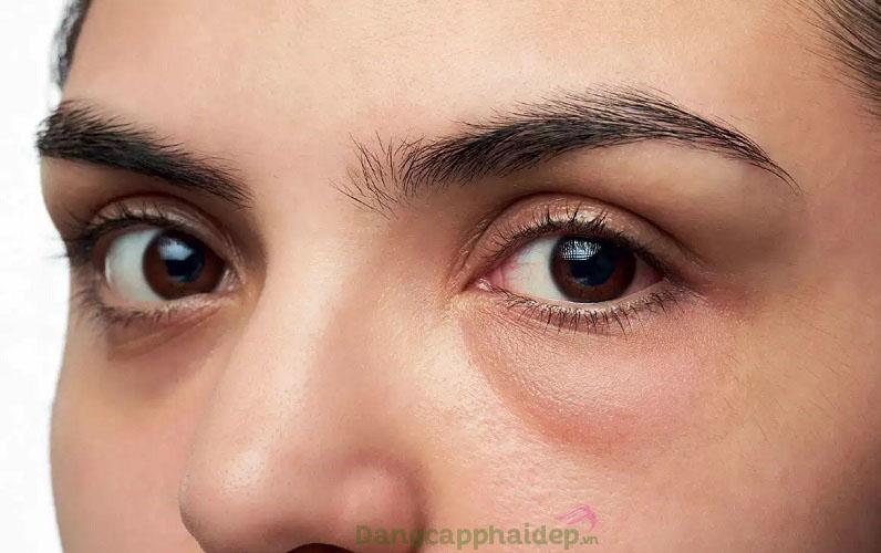 Mất điểm trong mắt người đối diện vì đôi mắt tối màu, nếp nhăn, bọng mắt...