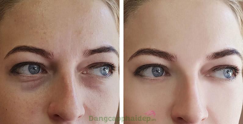 Sản phẩm là giải pháp tối ưu dành cho ai cần cải thiện làn da vùng mắt căng mịn, tươi trẻ