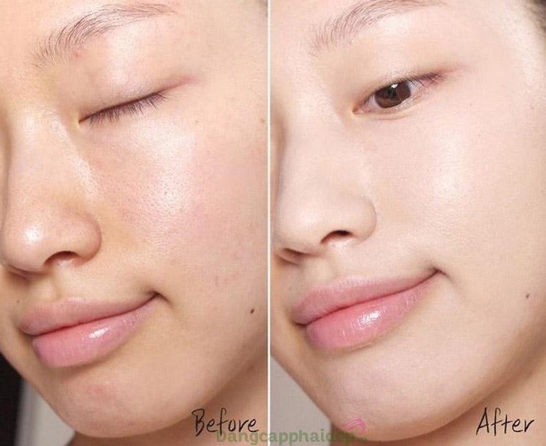 Làn da thay đổi tích cực từng ngày khi sử dụng tinh chất Dr Spiller Mountain Creek Balnace Purifying Ampoule