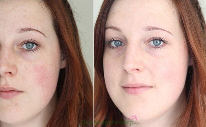 Trước và sau khi sử dụng serum làm sáng da mờ nám Ageless Total Intense Brightening Serum